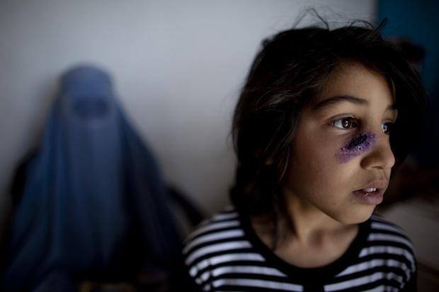 Sand-Fly Skin Disease Besets Afghanistan